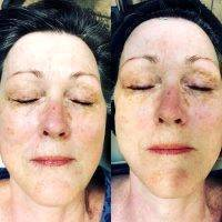 Microcurrent Galvanic Face Lift Before After Photos (4)