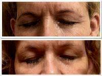 Microcurrent Galvanic Face Lift Before After Photos (5)