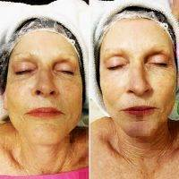 Microcurrent Galvanic Face Lift Before After Photos (6)