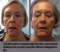 Microcurrent Treatment Before And After (1)