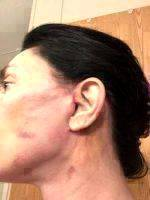 Mini Facelift Recovery Scars (11)