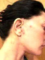 Mini Facelift Recovery Scars (12)