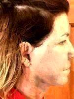 Mini Facelift Recovery Scars (4)