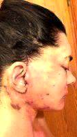 Mini Facelift Recovery Scars (8)
