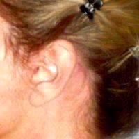 Mini Facelift Scar (16)
