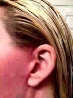 Mini Facelift Scars (2)