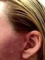 Mini Facelift Scars (3)