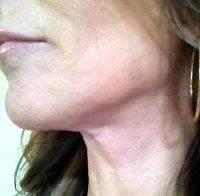 Mini Facelift Surgery Is The Most Common Type Of Facelift Surgery