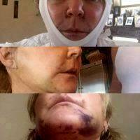 Minor Hematoma Facelift Pictures