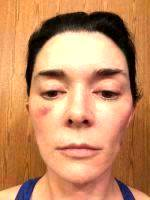 Natural Looking And Life-long Result With A Mini Facelift