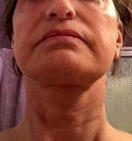 Neck Lift And High SMAS Lift