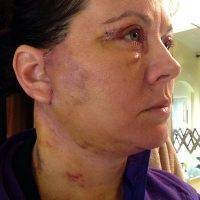 Neck Lower Face Lift Recovery