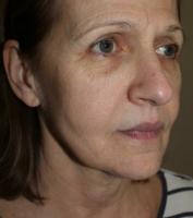 Non Surgical Facelift Facial
