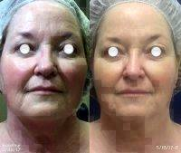 Nuface Microcurrent Facial Toning System Before After