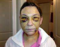 Photo Of Hematoma After Facelift Surgery