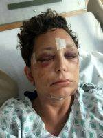 Photos Of Post Facelift Hematoma (4)