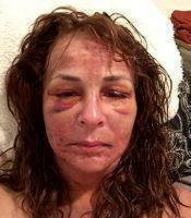 Pictures Of Hematoma Facelift Surgery (1)