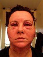 Pictures Of Lower Facelift Recovery (1)