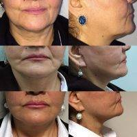 Platysmaplasty Before And After Photos