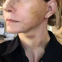Post Facelift Bruising Pictures (4)