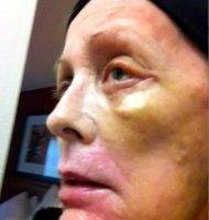 Post Facelift Bruising Pictures (5)