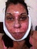 Post Facelift Bruising Pictures (7)