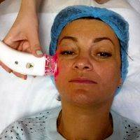 RF Facelift Is Commonly Used To Treat The Forehead, Under The Eyes, Cheeks