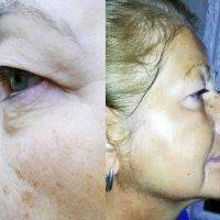 RF Lifting Before And After (14)