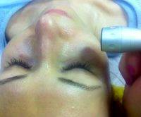 Radio Frequency Facelift At Home