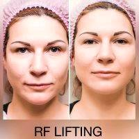 Radio Frequency Facelift Before And After Image