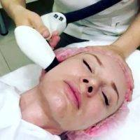 Radio Frequency Facelift Treatment Before And After (1)
