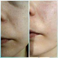 Radio Frequency Facelift Treatment Before And After (11)