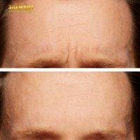 Radio Frequency Facelift Treatment Before And After (12)