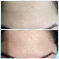 Radio Frequency Facelift Treatment Before And After (13)