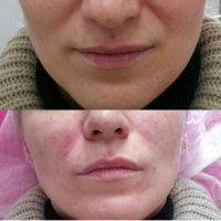 Radio Frequency Facelift Treatment Before And After (3)