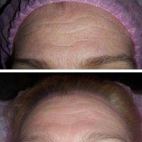 Radio Frequency Facelift Treatment Before And After (4)