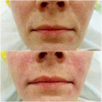 Radio Frequency Facelift Treatment Before And After (5)