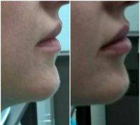 Radio Frequency Facelift Treatment Before And After (6)