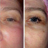 Radio Frequency Facelift Treatment Before And After (7)