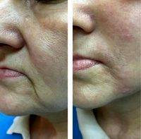 Radio Frequency Facelift Treatment Before And After (8)