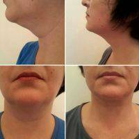 Radio Frequency Facelift Treatment Before And After (9)