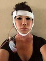 Recovery After Lower Face And Neck Lift