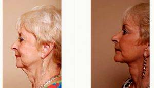 Refresher Lift - 71 Year Old Female With Dr Christian G. Drehsen, MD, Tampa Plastic Surgeon