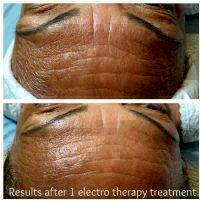 Results After 1 Electro Therapy Threatment