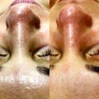 Rf Facelift Before And After (5)