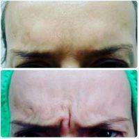 Rf Treatment Before And After (15)