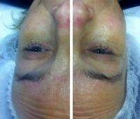 Rf Treatment Before And After (5)