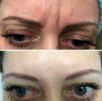 Rf Treatment For Face Before And After (2)