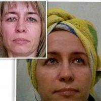 Rf Treatment For Face Before And After (4)