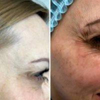 Rf Treatment For Face Before And After (6)